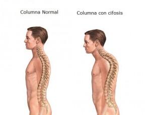 Columna-normal-vs-Cifosis